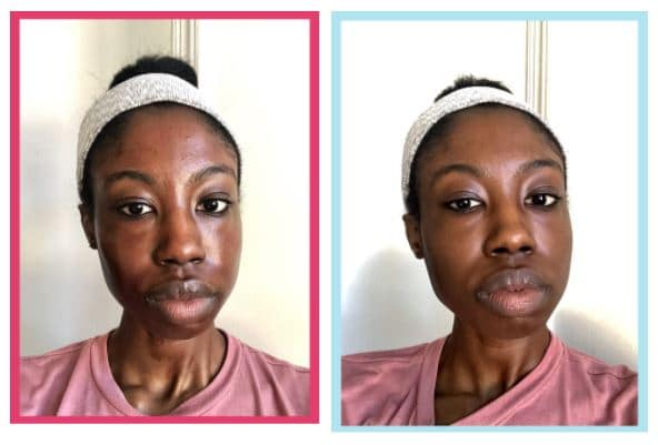 REVIEW: Is The Ordinary Peeling Solution Really a Miracle Worker?